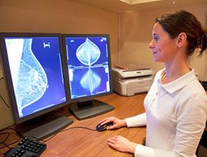 Study sugests mammograms may have created 1.3 million cases of breast cancer in US