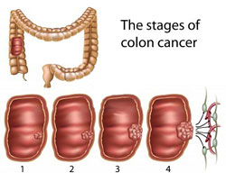 how to clean colon walls